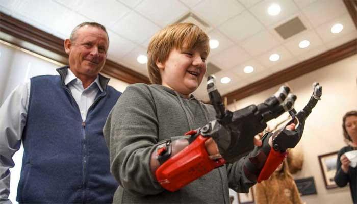 تورنتو؛ معجزه کریسمس برای کودک ۱۱ سالهای که بدون انگشت به دنیا آمده بود