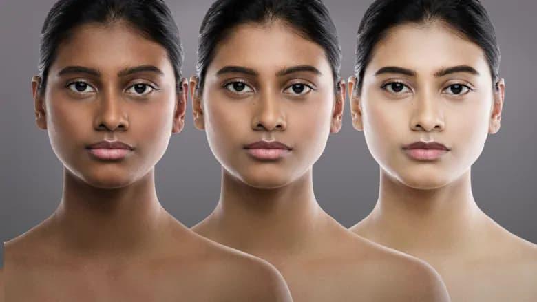 برخی از کرمهای روشن کننده پوست در بازار کانادا خطرناک و غیرقانونی هستند