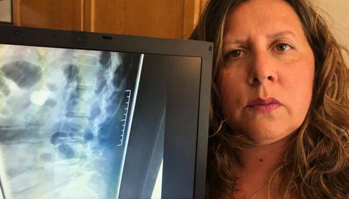 Photo of یک سوزن شکسته از زمان زایمان این زن در ۱۶ سال پیش، در ستون فقرات او جا مانده است